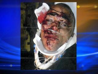 Alexander-Landau-Denver-Police-Beating-Lawsuit-Image-Victim-1--26482791.jpg