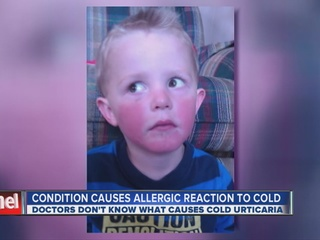 Rare_condition_causes_allergic_reaction__93890001_20121115062207-10946