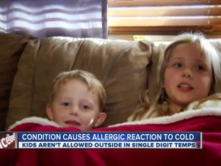 Rare_condition_causes_allergic_reaction__93890002_20121115062210-10946