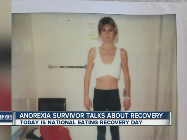 Denver anorexia survivor wants to help others battling eating disorders