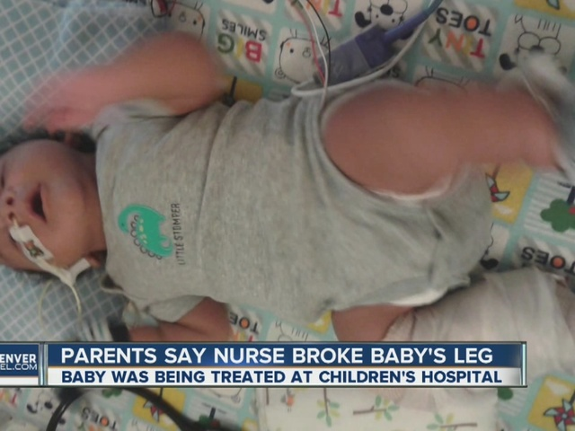 Couple claims nurse broke baby's leg