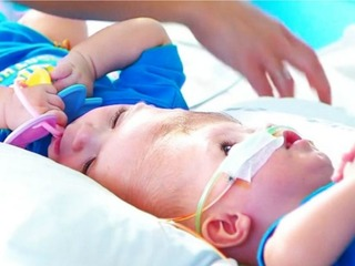Doctors successfully separate conjoined twins