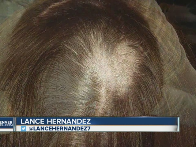 Denver woman says lab tech took too much hair for follicle drug ...