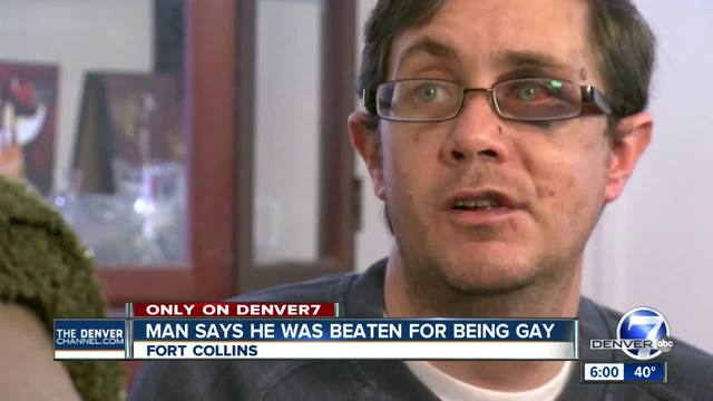 Fort Collins man says he was beaten for being gay
