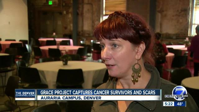 Grace Project captures breast cancer survivors and scars