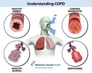 COPD Beats Stroke as #3 Cause of Death