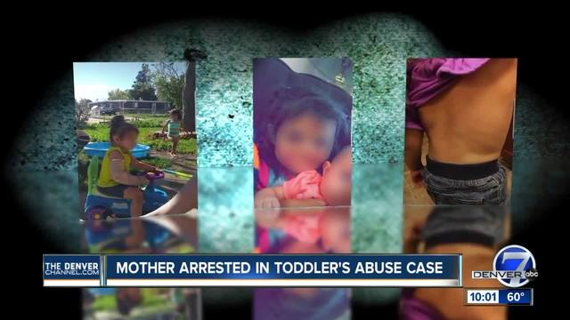Mother of severely-injured Lakewood toddler arrested for possible child abuse