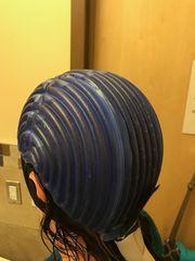Cancer survivor's cold cap prevents hair loss