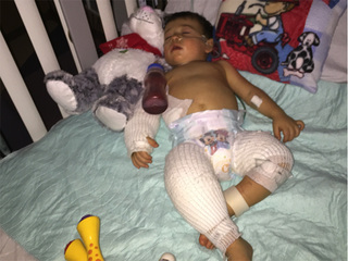 Graphic photos: Baby burned at preschool