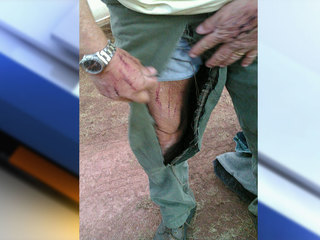 Picture shows injuries from Park Co bear attack