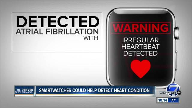 Apple Watch, plus, cardiogram, can