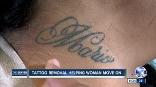 Tattoo removal gives women fresh start
