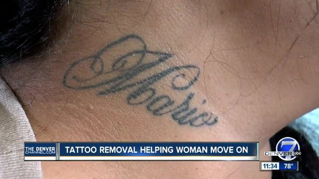 Tattoo removal helps domestic abuse survivor move on for Tattoo removal business