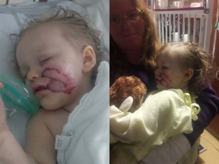 2-year-old mauled by dog twice in Denver