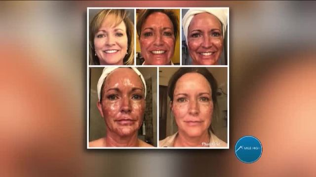 Receive the Kybella Treatment with Ageless Expressions