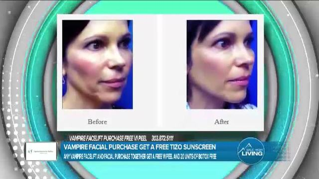 Ageless Expressions MedSpa - Learn about the Vampire Facelift and Facial