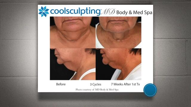 MD Body and Med Spa- Get your free consultation today-