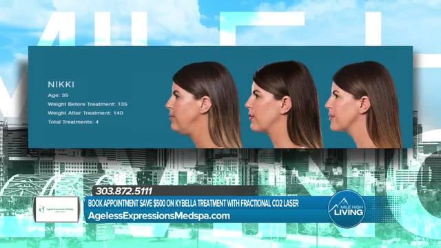 Ageless Expressions MedSpa- Kybella Treatment